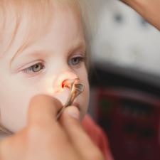 neus keel oor poliepen verwijderen